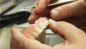 denture-repairs-img