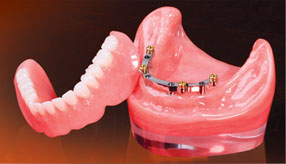 implant-denture-img